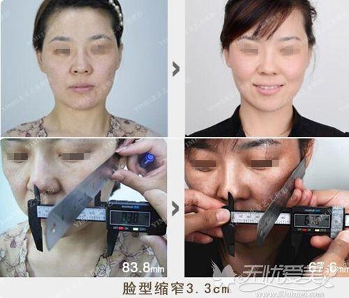 北京艺美不开刀降颧骨前后对比案例