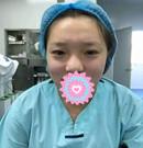 作为沈阳元辰的一名护士 一场双眼皮整形手术后美丽蜕变