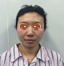 沈阳元辰医生为导诊崔循打造的鼻综合和面部脂肪填充案例