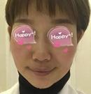 在长沙协雅初尝射频微针心得 脸上有痘印皮肤不好赶快来看