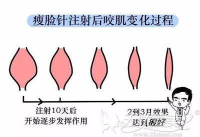 揭阳华美解析瘦脸针的效果
