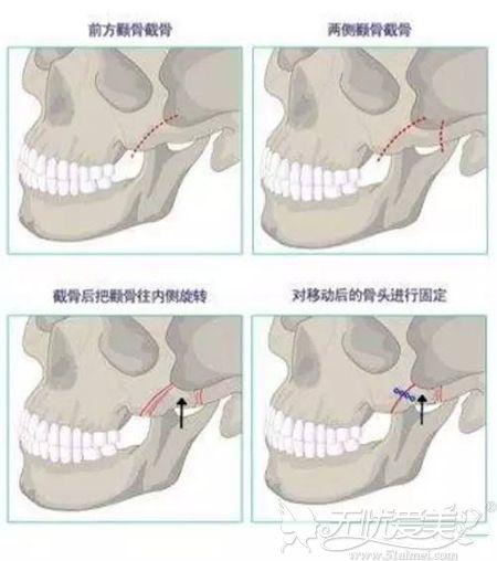 颧骨内推手术原理