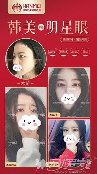 韩美明星综合美眼术真实案例