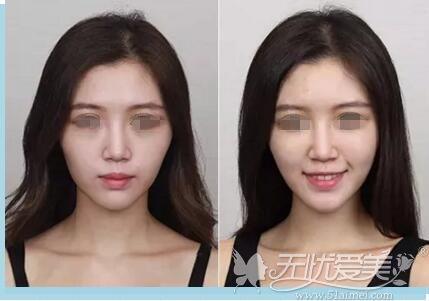 韩美面部填充对比案例