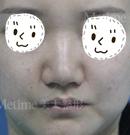 高鼻梁我也有啦!通过承德美天的假体隆鼻术再不用羡慕别人
