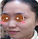 经过在正规的重庆康雅医院做假体隆鼻手术后逆袭成女神