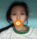 大家看我花四万多在山西整形外科找刘晋元做的隆鼻值不值