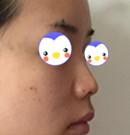 实拍我找山西整形外科医院刘晋元做鼻综合2个月后的效果