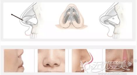韩国裴柄万医生ARSMO鼻软骨手术