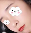 山西整形外科医院刘晋元的假体隆鼻术是老公送我的520礼物