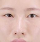 西安艾薇美荆万理做双眼皮效果如何?我的真实经历表明一切术前