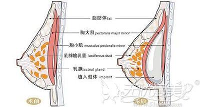 假体隆胸手术原理