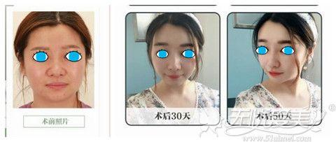 北京华韩下颌缘吸脂案例