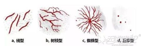 形成红血丝的几种类型