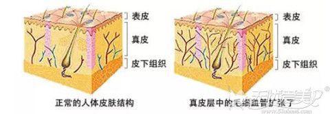 真皮血管扩张