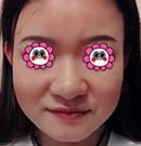 我在佛山医博士打瘦脸针的亲身经历告诉大家术后效果如何