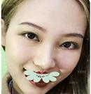 历经千挑万选在重庆康雅做假体隆鼻30天后收获满意效果