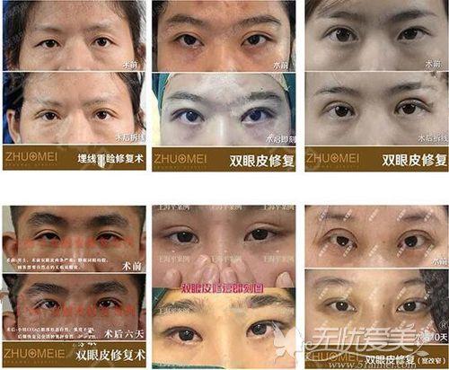 王海平教授双眼皮修复案例效果展示