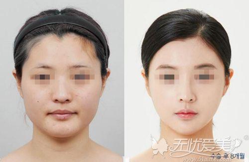 上海美联臣下颌角改脸型对比案例