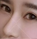 在长沙雅美做了鼻综合就能变身混血美女?亲身经历揭晓答案