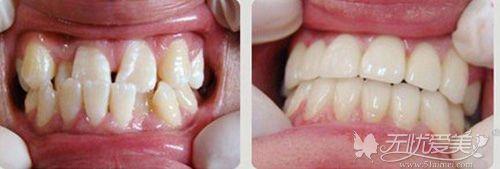 重庆时光牙齿矫正案例