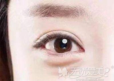 眼袋的出现影响眼部神采