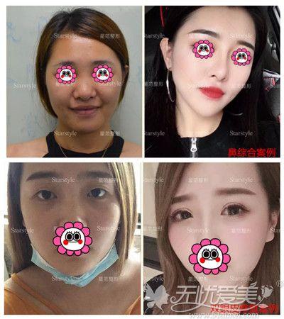桂林星范眼鼻整形效果对比