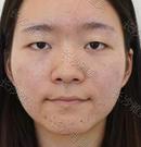 眼鼻整形可以一起做吗?在长沙雅美就可以另附618优惠价格