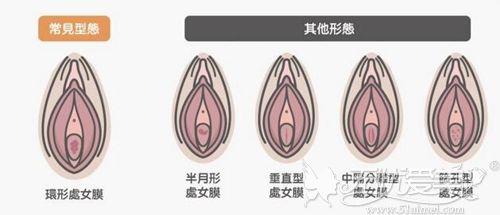 处女膜的形状