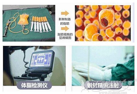 北京禾美嘉面部脂肪填充的优势