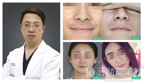 北京禾美嘉自体脂肪面部填充医生 案例