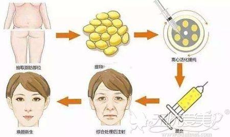 北京禾美嘉全面部自体脂肪填充