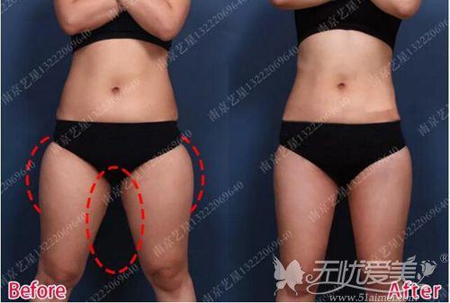 南京艺星大腿吸脂内侧对比效果