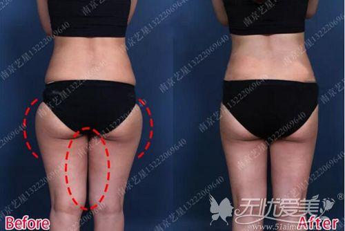 南京艺星大腿吸脂背面对比效果
