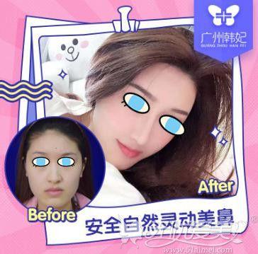 广州韩妃隆鼻案例