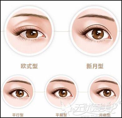 双眼皮的类型