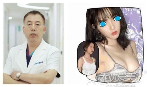美加美专业假体隆胸医生陈誉华