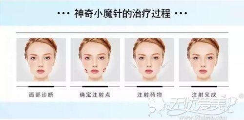 6d瘦脸针的注射过程