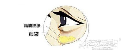 眼袋是眼部下方脂肪膨胀形成