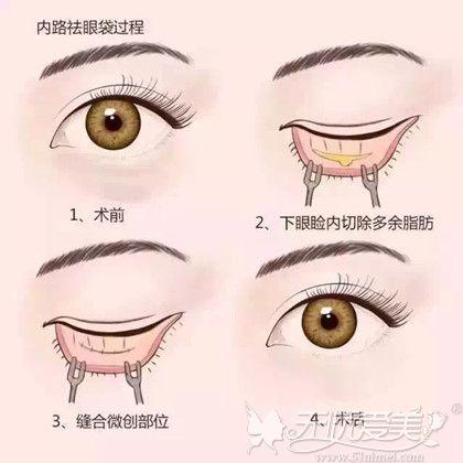 内路祛眼袋手术过程