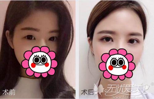 赣州韩美双眼皮对比案例