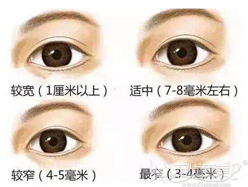 双眼皮宽窄的标准