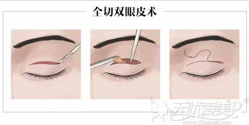 全切双眼皮手术原理