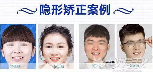 广西爱思特隐形牙齿矫正案例