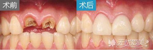 北京美莱种植牙案例