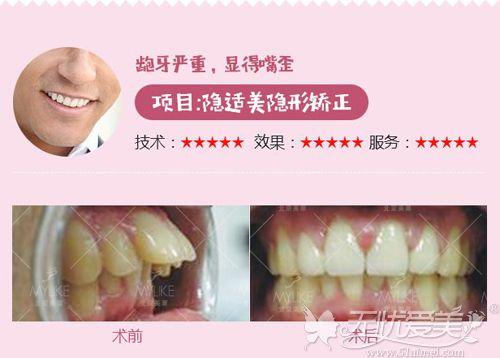 北京美莱隐形牙套矫正案例