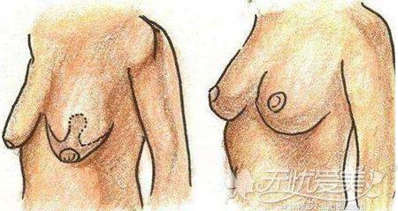 上海韩镜胸部悬吊术