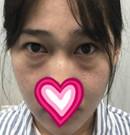 遵义韩美去眼袋技术怎么样?亲身体验后晒出术前术后照