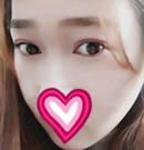 遵义韩美去眼袋技术怎么样?亲身体验后晒出术前术后照术后