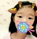 身为学生在父母同意下来遵义韩美找代明星做了切开双眼皮